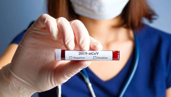 Coronavirus_12 (1)