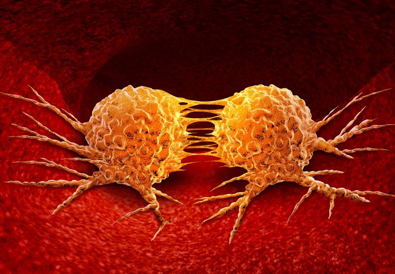 Cancro e metabolismo: una liason diabolica